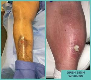 open sores leg