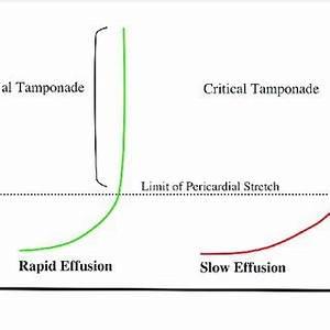 volume–pressure relationship in cardiac tamponade ...