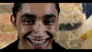 Royalty Free Stock Footage Of Young Man With Braces Stares