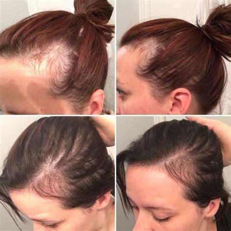 postpartum hair loss hairstyles hair