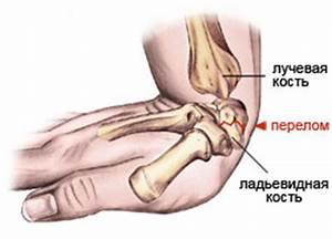 Мази после снятия гипса при переломе лучезапястного сустава