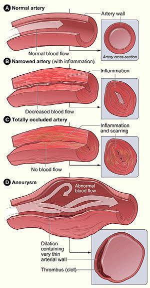 vasculitis society  vascular surgery