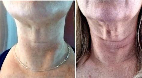 Facial Exercisers - Simple Facial Flex Improve Skin Tone