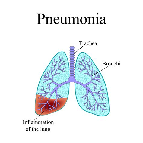 Anthrax Bacterium Diagram by Pneumonia The Anatomical Structure Of The Human Lung