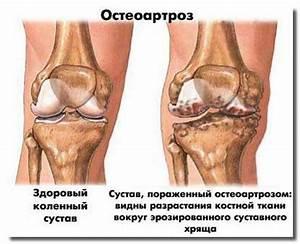 Методика лечения артроза евдокименко