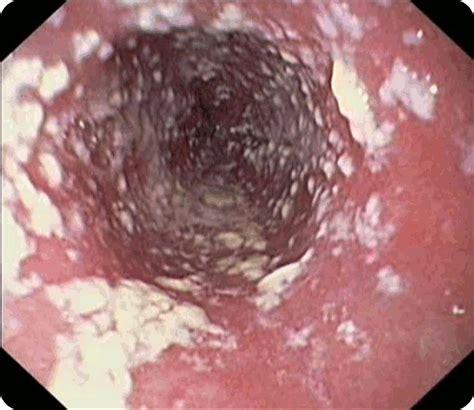 Candida svamp i tarmen symptom