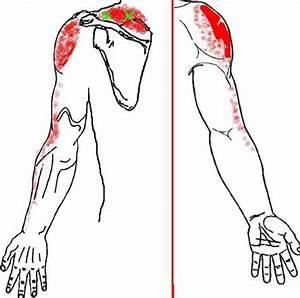 Тремор рук от шейного остеохондроза