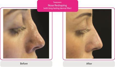 Non-Surgical Nose Job - New Photos | SkinViva Manchester