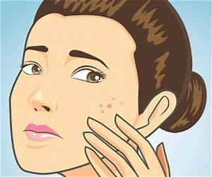 Festive Fairy : Acne: My Experience - Women Health 2