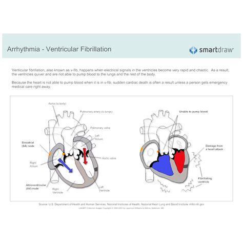 arrhythmia ventricular fibrillation