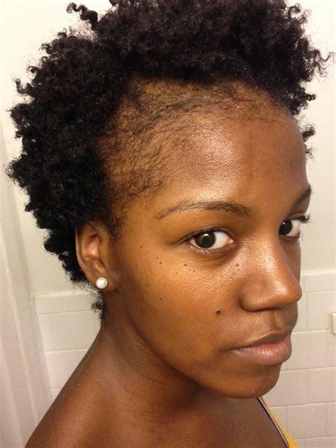 natural hair thinning edges   grow edges  bald