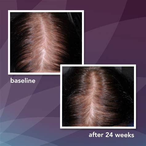 Amazon.com: Women's Rogaine 2% Minoxidil Topical Solution
