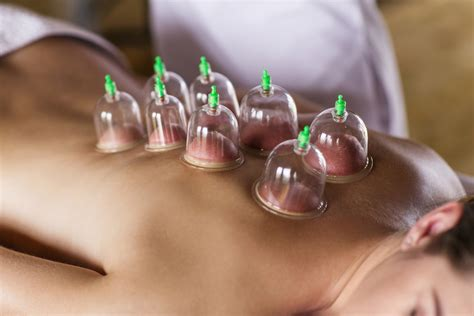 cupping pain