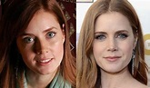 Amy Adams Plastic Surgery for more beautiful face?