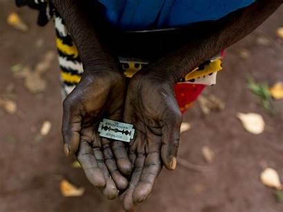 Genital Female Mutilation Fgm Human Trump Number