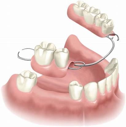 Partial Removable Dentures Denture Tooth Dental Implant