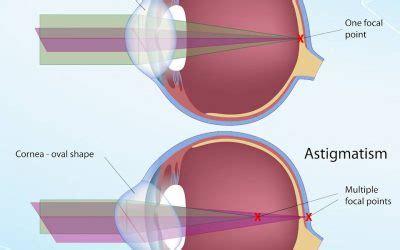 silc lasik center jakarta lasik di jakarta indonesia dengan teknologi terkini z lasik
