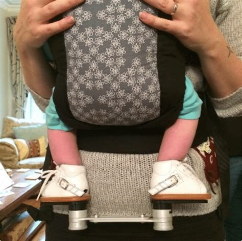 Clubfoot is a congenital foot deformity in which the foot turns down and inward. Babywearing with talipes - or club foot - Carrying Matters