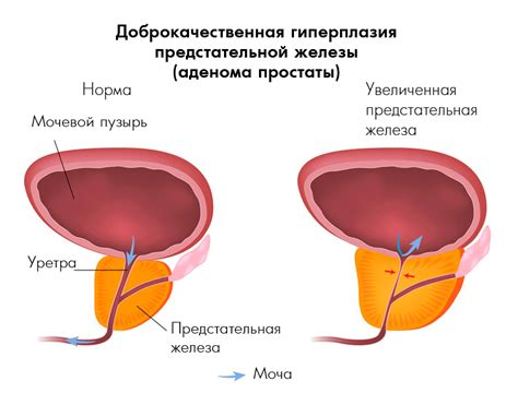 левитра аденома простаты