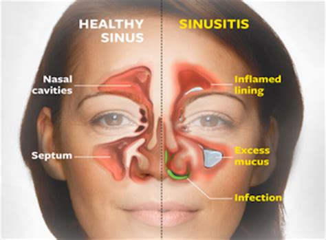 not es lilin how to get rid of a sinus infection naturally the secret to stop recurrences healyounaturally