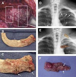 Switch Career Costochondral Calcification Osteophytic Degeneration And