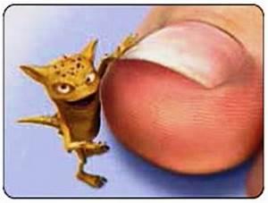 Чем убить грибок между пальцами ног