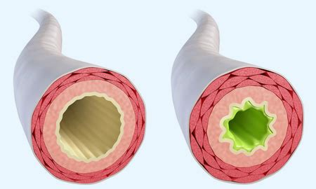 Chronische Bronchitis  Symptome, Ursachen, Behandlung