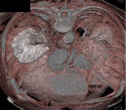 pseudotumor due  asbestos  pleural  diaphragmatic