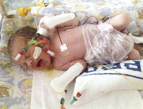 mum speaks   baby gastroschisis  born