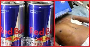 He Quickly Drank 24 Cans Of Red Bull… Soon? THIS Starts ...