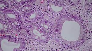 013 Intestinal Metaplasia And Low Grade Dysplasia In