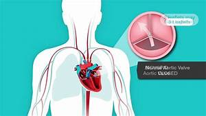 Learn About Bicupsid Aortic Valves And Mitral Valve