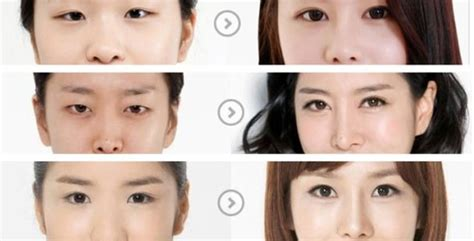 Korean Plastic Surgery Clinics + Trips Vegas Brand Plastic Playing Cards Surgeons In Birmingham Al Clear 6 Mil Sheeting Tablecloth Roll Tub Repair Kit White Little Rock Ar Surgery On Neck