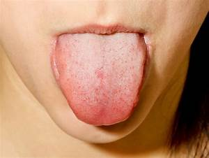 Image Gallery normal tongue coating
