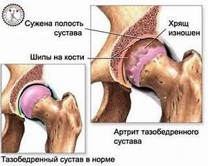 Заговор чтобы суставы рук не болели