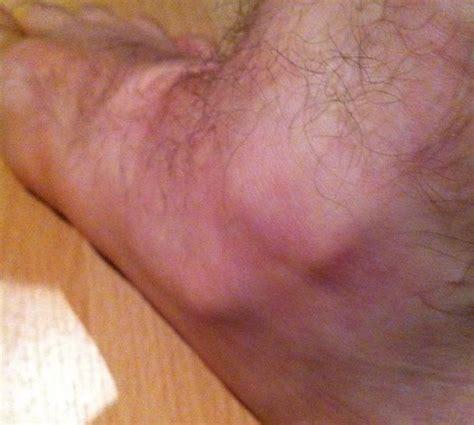 sprinttraining mit komischer knoechelverletzung machen