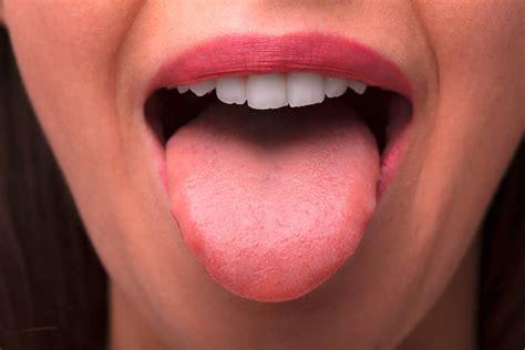 Übertragung über Speichel: Corona-Infektionen auch im Mund ...