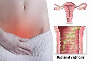 The gallery for --> Bacterial Vaginosis Sores