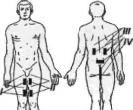 Потенция после инфаркта и стентирования