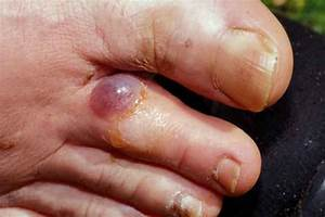7 Home Remedies To Heal Blisters Quickly