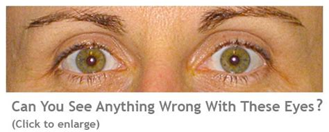 What Is A Lazy Eye Amblyopia Or Lazy Eye The Focal Point Optometrist Perth