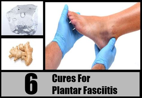 awesome easy remedies for plantar fasciitis pequot runners 17 best images about plantar fasciitis on