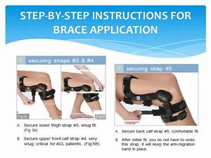 Donjoy Knee Brace Acl  U0026 Oa Fitting Guide