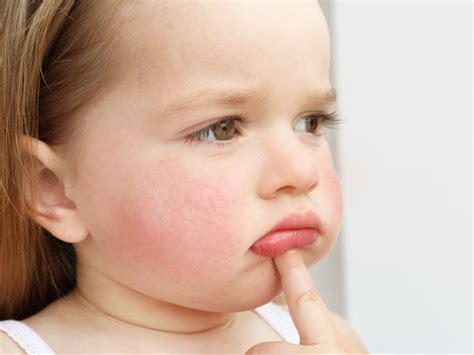 infection impetigo attention  la contagion