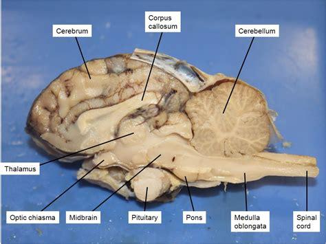 sheep brain anatomy diagram sheep brain dissection biology4friends