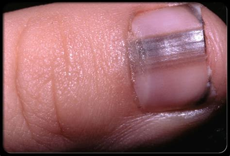 dusky nail beds lines beneath nail