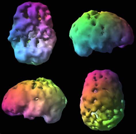 brain spect imaging  complex psychiatric cases