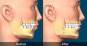 Jaw Surgery Types And Risks | MySmile CT Blog