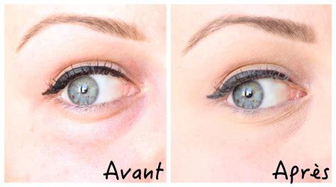 Soin contour des yeux la meilleure crème anti cerne & antipoche Sans ordonnance