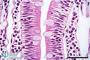 Large Intestine Slide